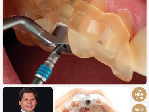 Workflow Digital em Implantologia / Da Cirurgia à Prótese